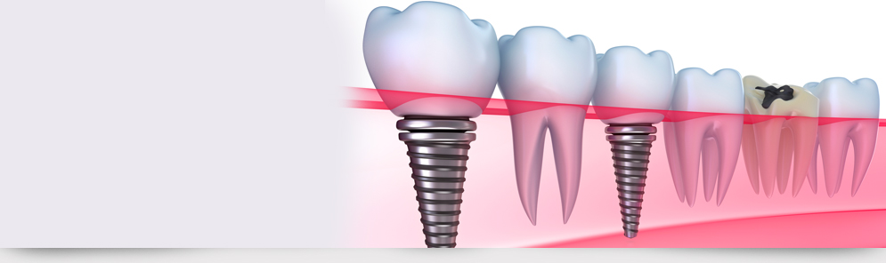 Root canal treatment in kochi