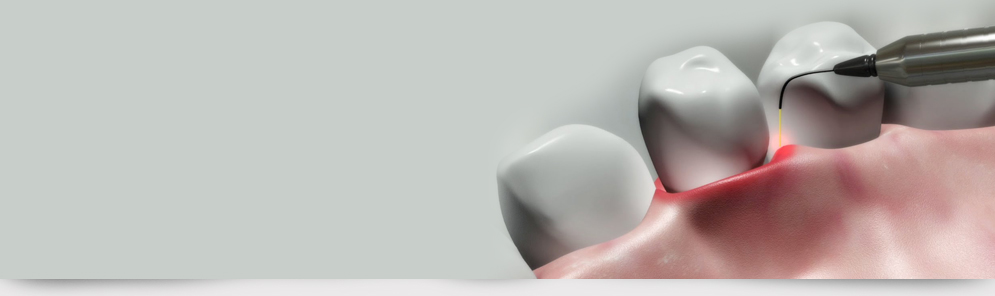 Root canal treatment in ernakulam